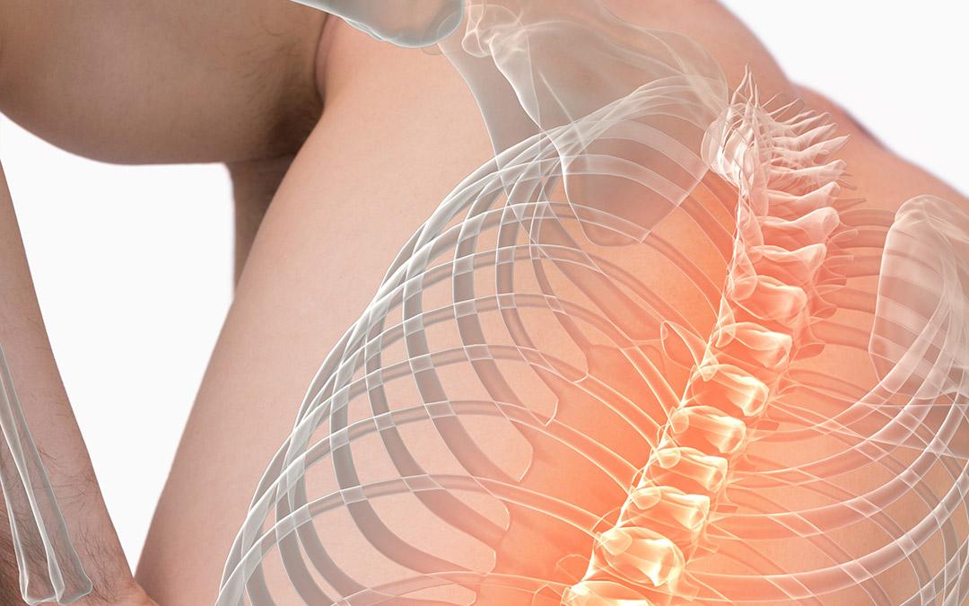 Mal di schiena dorsale o dorsalgia