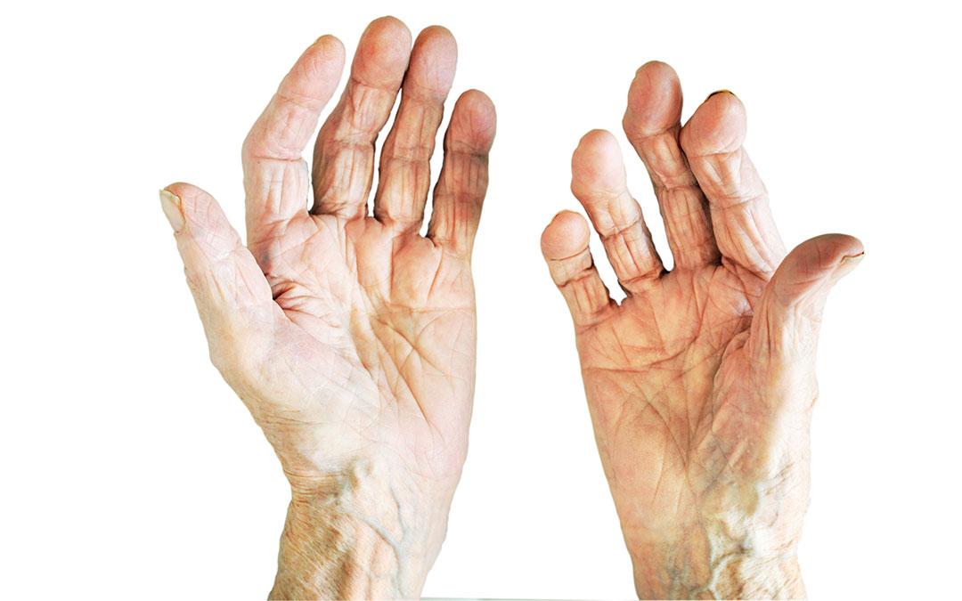 Artrite Reumatoide: Cos'è, Sintomi, Cause, Rimedi
