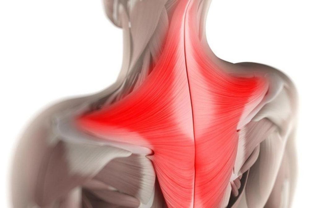 Muscolo Trapezio: Anatomia, Funzioni, Dolore, Cause, Rimedi